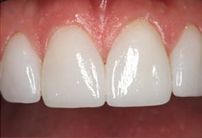 Salida Before and After Invisalign